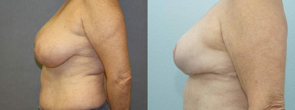 Breast Reconstruction  Gallery - Patient 47146719 - Image 2