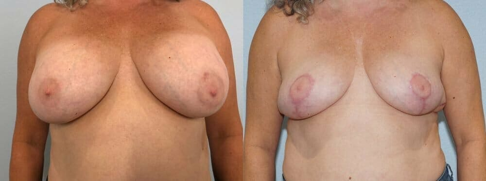 Breast Revision Gallery - Patient 47146927 - Image 1