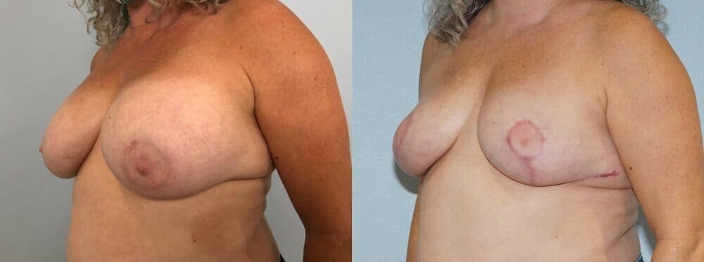 Breast Revision Gallery - Patient 47146927 - Image 2