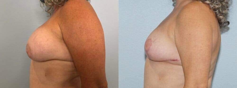 Breast Revision Gallery - Patient 47146927 - Image 3