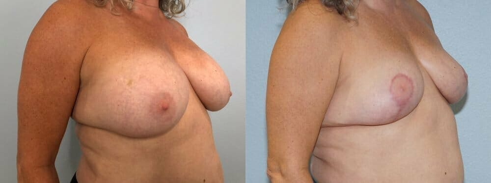 Breast Revision Gallery - Patient 47146927 - Image 4