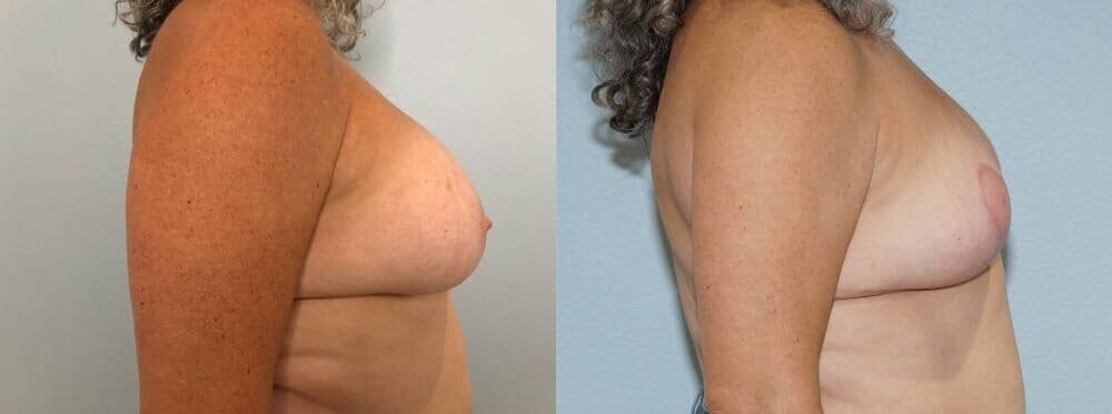 Breast Revision Gallery - Patient 47146927 - Image 5
