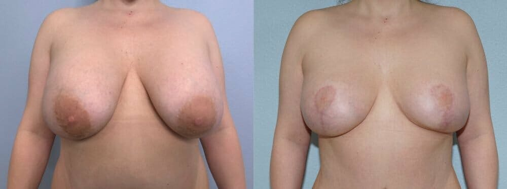 Breast Revision Gallery - Patient 47146941 - Image 1