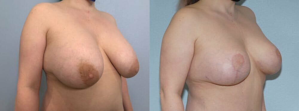 Breast Revision Gallery - Patient 47146941 - Image 2