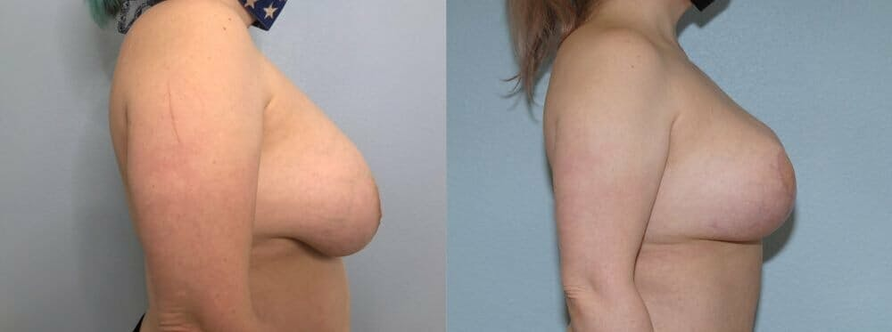 Breast Revision Gallery - Patient 47146941 - Image 3