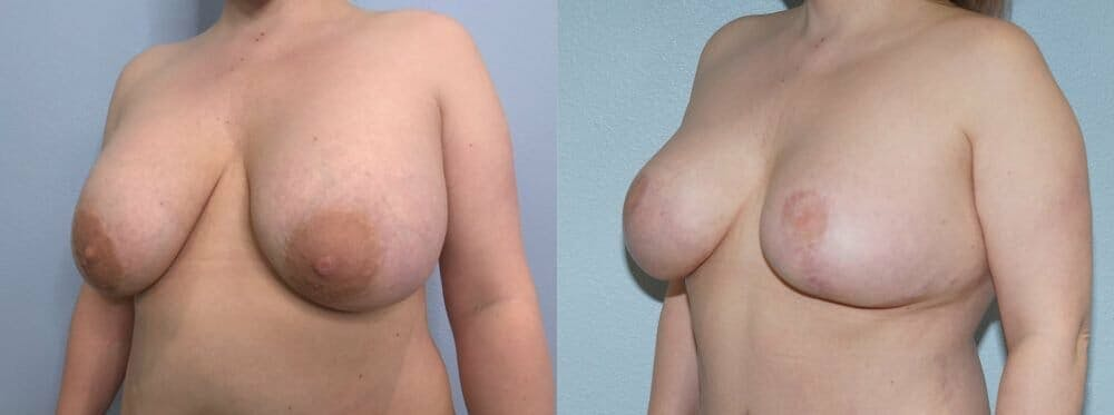 Breast Revision Gallery - Patient 47146941 - Image 4