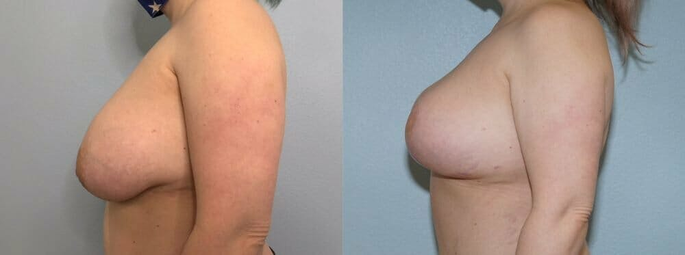 Breast Revision Gallery - Patient 47146941 - Image 5