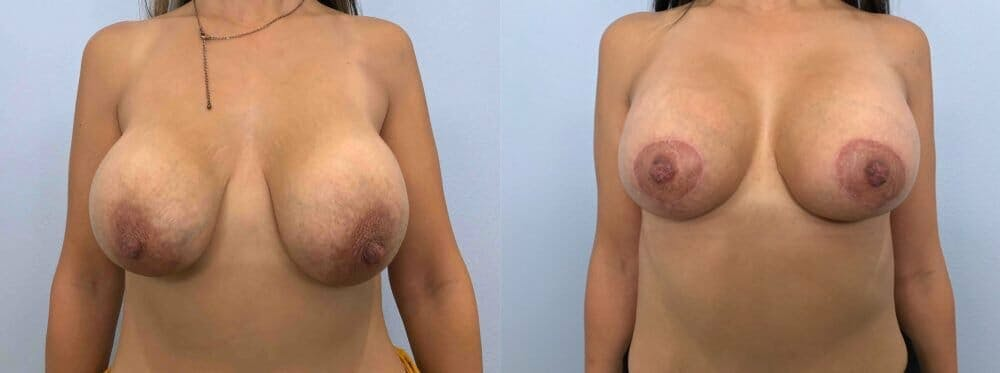 Breast Revision Gallery - Patient 47146948 - Image 1