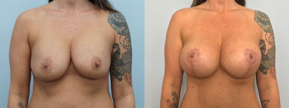 Breast Revision Gallery - Patient 47146949 - Image 1