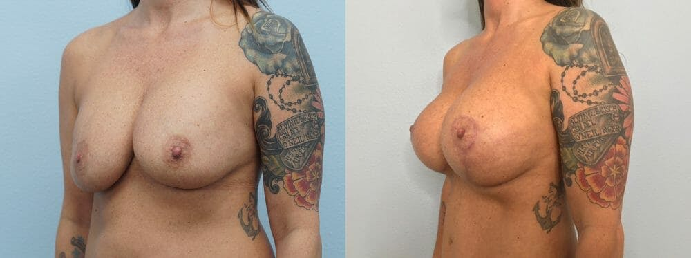 Breast Revision Gallery - Patient 47146949 - Image 2