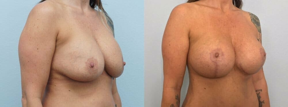 Breast Revision Gallery - Patient 47146949 - Image 4