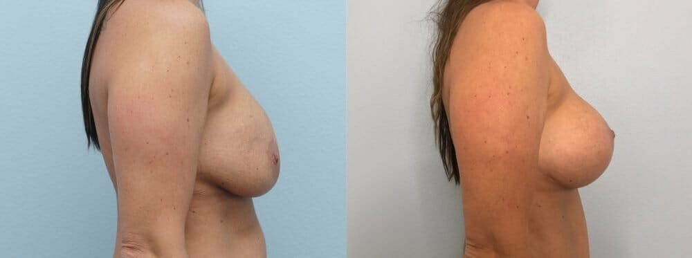 Breast Revision Gallery - Patient 47146949 - Image 5