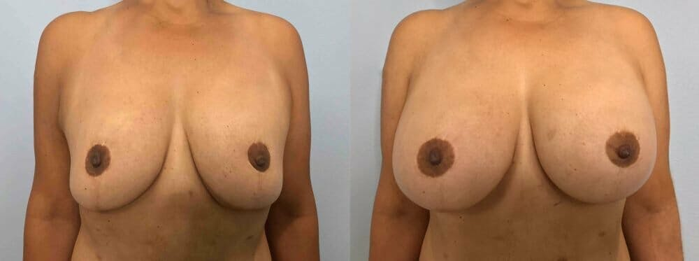 Breast Revision Gallery - Patient 47146950 - Image 1