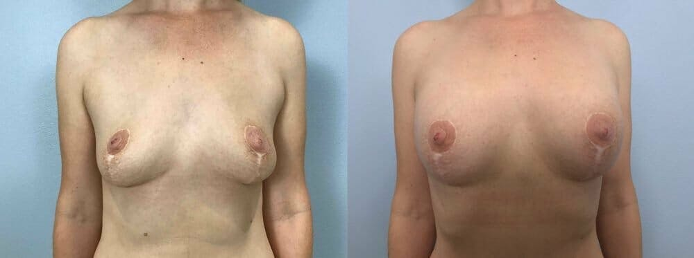 Breast Revision Gallery - Patient 47146951 - Image 1