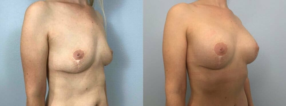 Breast Revision Gallery - Patient 47146951 - Image 2