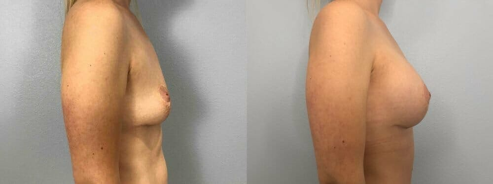 Breast Revision Gallery - Patient 47146951 - Image 3