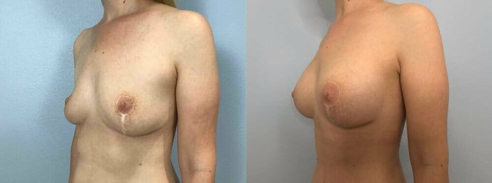 Breast Revision Gallery - Patient 47146951 - Image 4