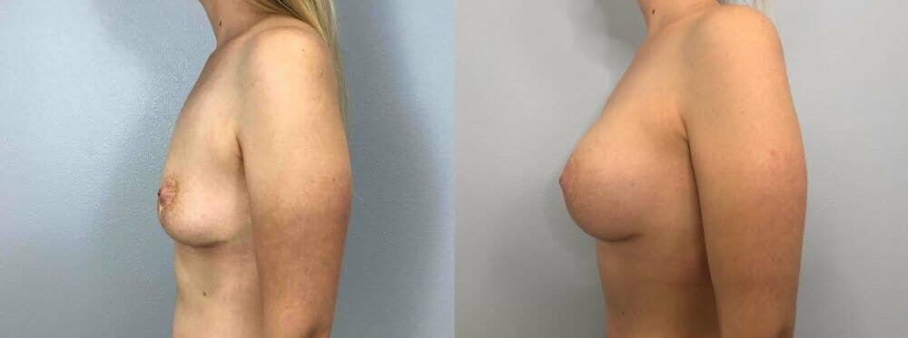 Breast Revision Gallery - Patient 47146951 - Image 5