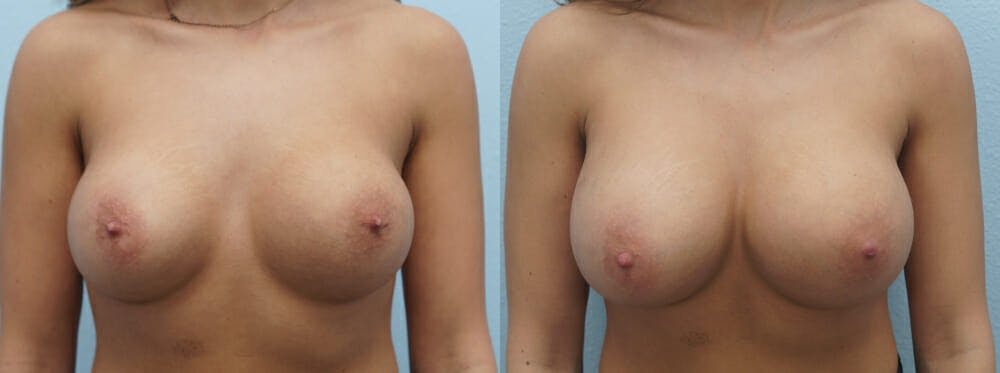 Breast Revision Gallery - Patient 47146952 - Image 1