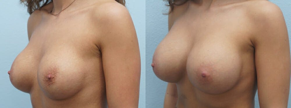 Breast Revision Gallery - Patient 47146952 - Image 2
