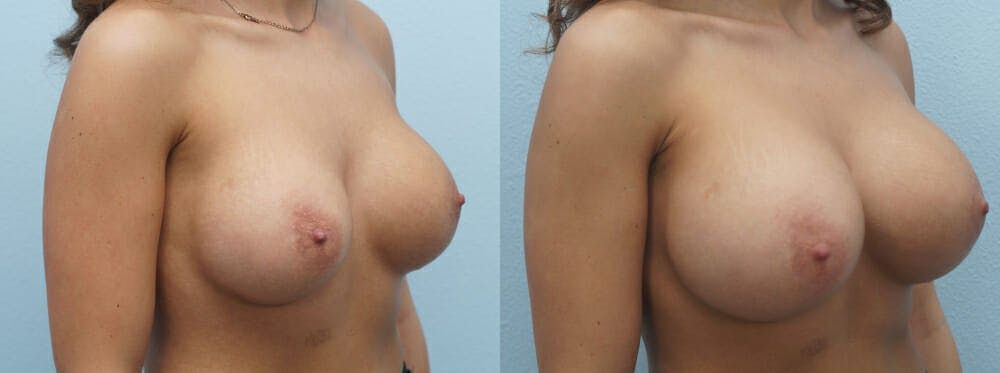 Breast Revision Gallery - Patient 47146952 - Image 4