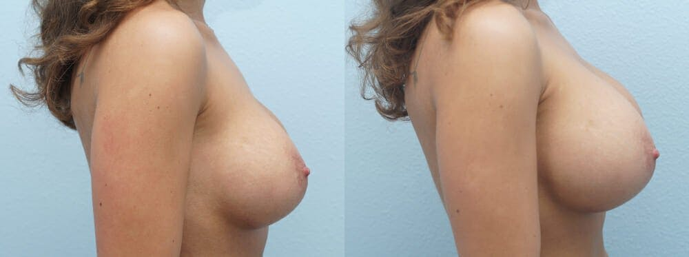 Breast Revision Gallery - Patient 47146952 - Image 5
