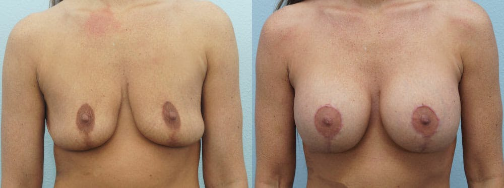 Breast Revision Gallery - Patient 47146953 - Image 1