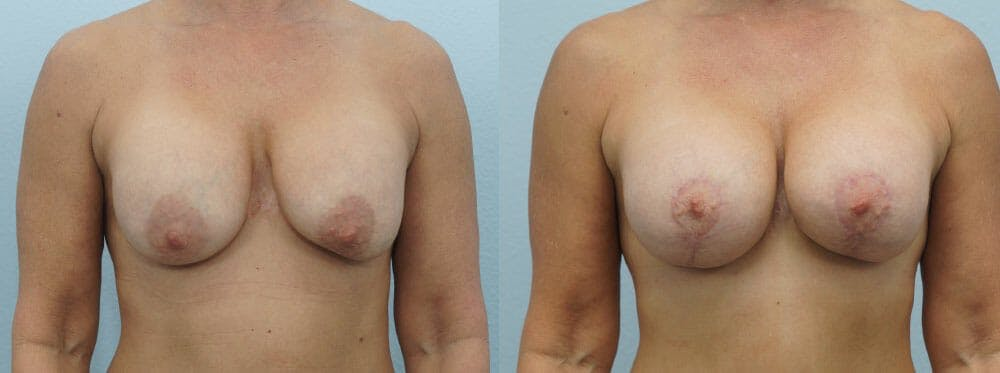 Breast Revision Gallery - Patient 47146954 - Image 1