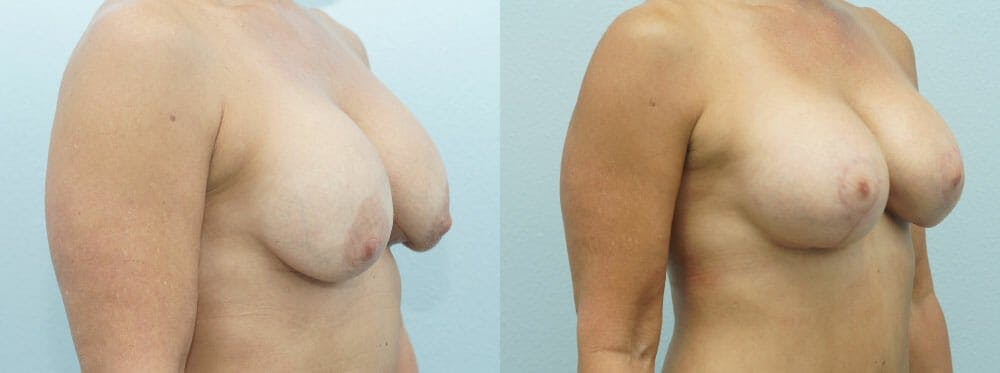 Breast Revision Gallery - Patient 47146954 - Image 2