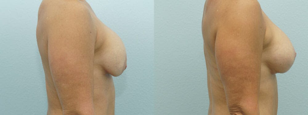 Breast Revision Gallery - Patient 47146954 - Image 3