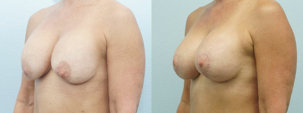 Breast Revision Gallery - Patient 47146954 - Image 4