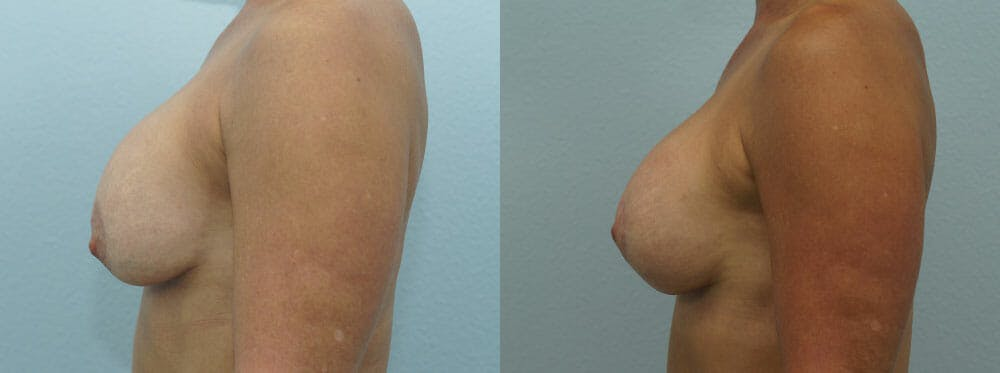 Breast Revision Gallery - Patient 47146954 - Image 5