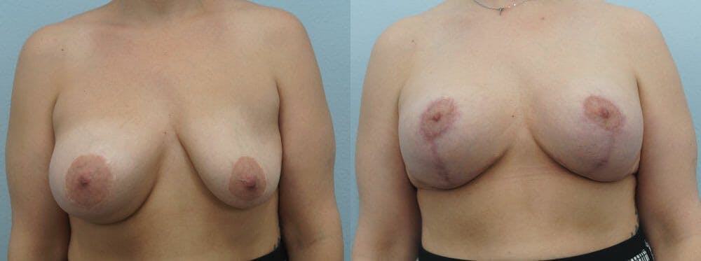 Breast Revision Gallery - Patient 47146956 - Image 1