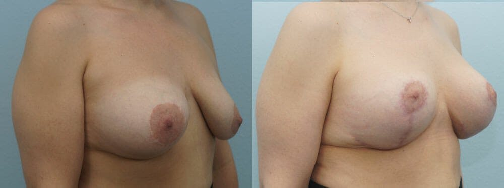 Breast Revision Gallery - Patient 47146956 - Image 2