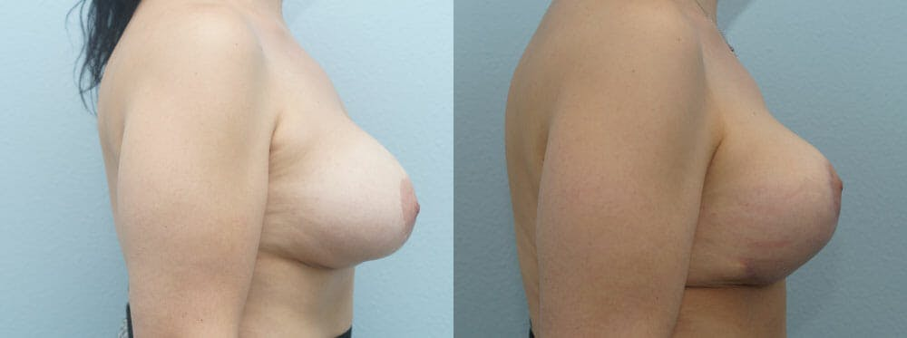 Breast Revision Gallery - Patient 47146956 - Image 3