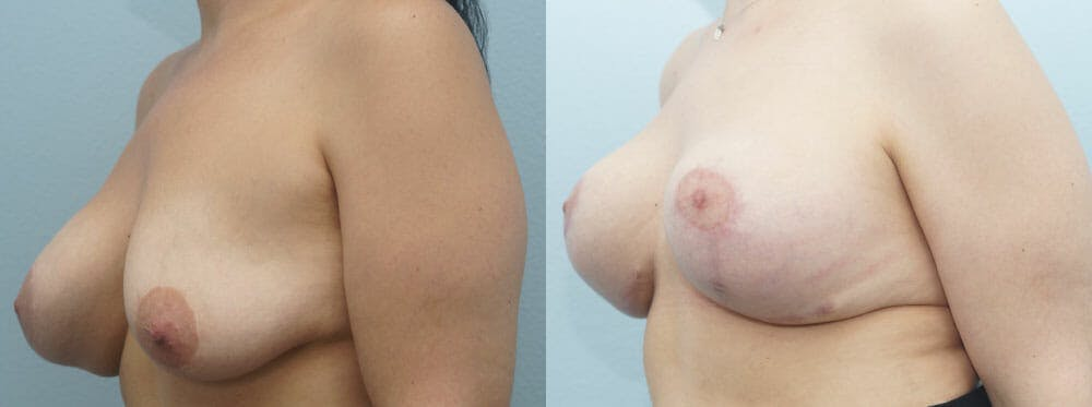 Breast Revision Gallery - Patient 47146956 - Image 4