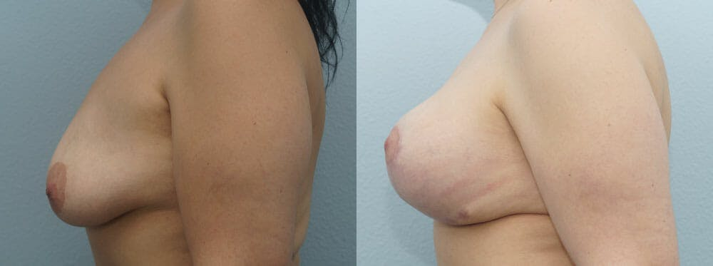 Breast Revision Gallery - Patient 47146956 - Image 5