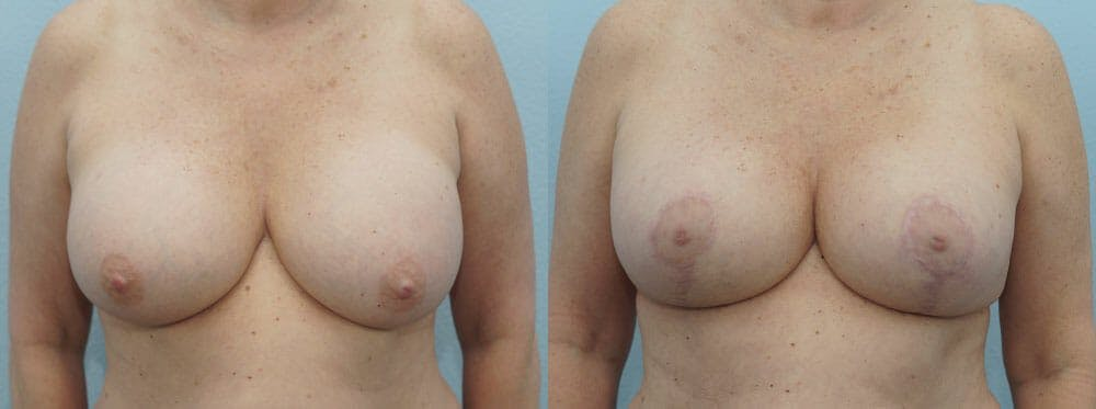 Breast Revision Gallery - Patient 47146986 - Image 1