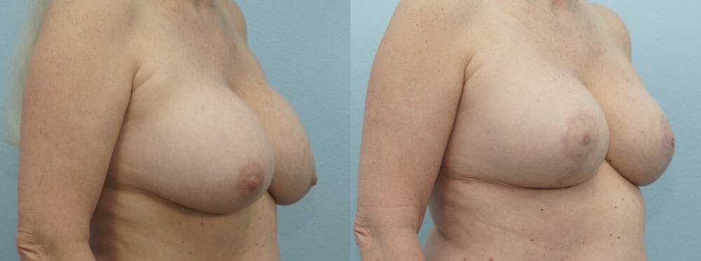 Breast Revision Gallery - Patient 47146986 - Image 2