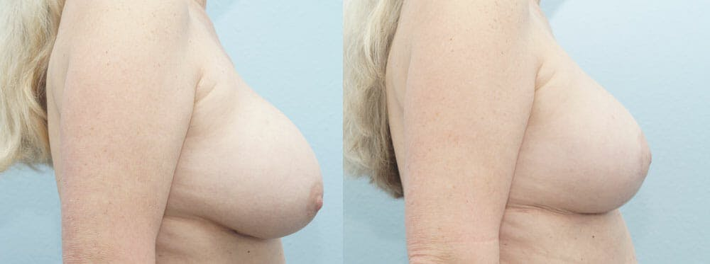 Breast Revision Gallery - Patient 47146986 - Image 3