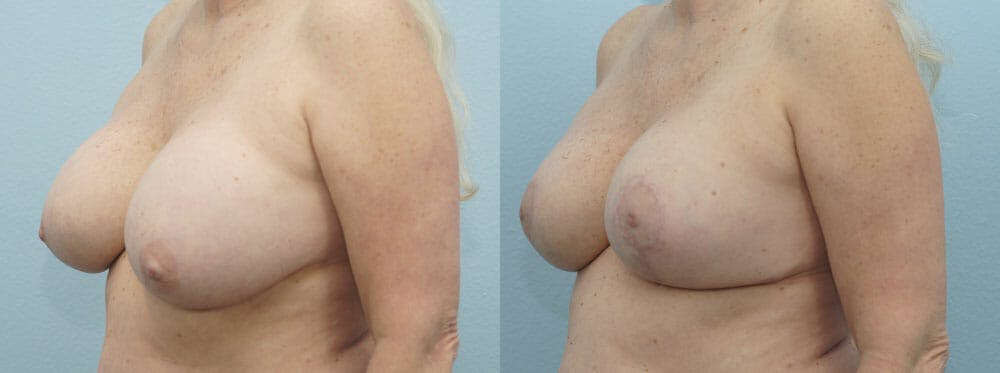 Breast Revision Gallery - Patient 47146986 - Image 4