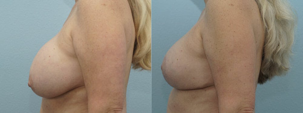 Breast Revision Gallery - Patient 47146986 - Image 5