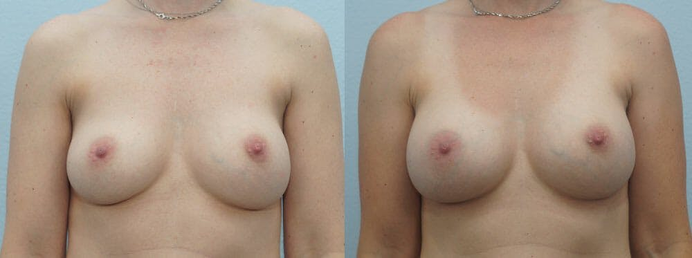 Breast Revision Gallery - Patient 47147030 - Image 1