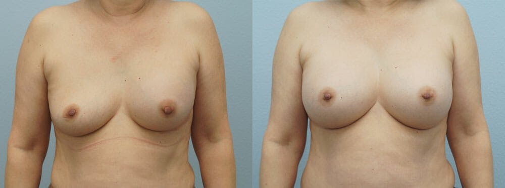 Breast Revision Gallery - Patient 47147041 - Image 1