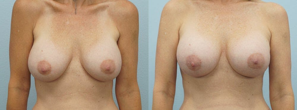 Breast Revision Gallery - Patient 47147048 - Image 1