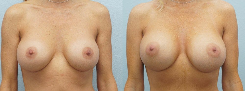 Breast Revision Gallery - Patient 47147061 - Image 1