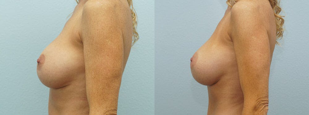 Breast Revision Gallery - Patient 47147061 - Image 2