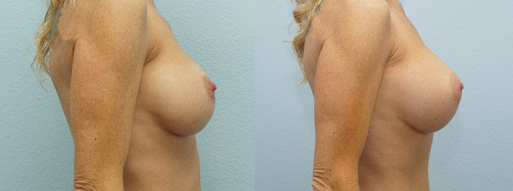 Breast Revision Gallery - Patient 47147061 - Image 3