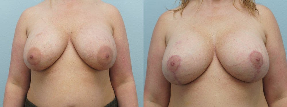 Breast Revision Gallery - Patient 47147068 - Image 1