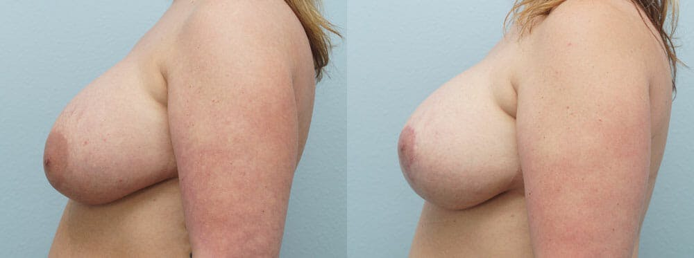 Breast Revision Gallery - Patient 47147068 - Image 2